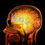 ecg trace and mri brain scan, artwork - stock illustration