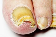 Fungal nail infection Stock Photos