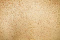 Women's Freckled Back Skin - stock photo