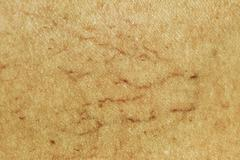 Varicose veins on leg macro - stock photo