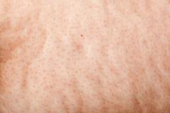 cellulite macro background - stock photo