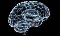 Stock Photo of Human Brain X-Ray
