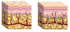 cellulite cross section - stock illustration