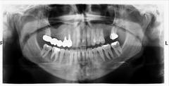 Teeth on x-ray image Stock Photos