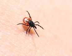 ticks ??on human skin. - stock photo