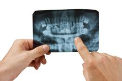 hand holds radiograph - stock photo