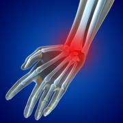 Stock Illustration of knee pain