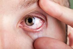 Blood capillary human eye Stock Photos