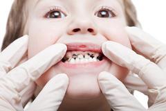 Karies hampaiden reikiintymistä Kuvituskuvat