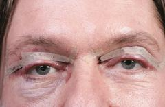Eyes after eyelid surgery Stock Photos