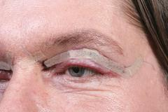Eyelid surgery Stock Photos
