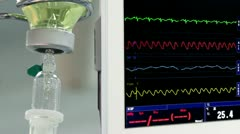 Drip with ECG monitor with surgeons on background Stock Footage