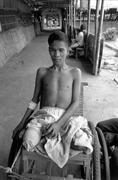war legless mine explosion victim at hospital on - stock photo