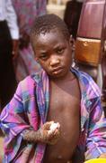Uganda boy with full blown aids masaka people Stock Photos