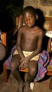 Uganda aids orphan with severe himself kampala Stock Photos