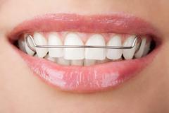 teeth with retainer - stock photo