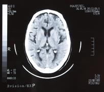 brain tomography. - stock photo