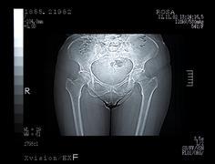 Scan of a Broken Pelvis. CT Scan - stock photo