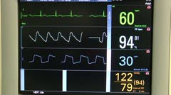Hospital Monitors Four Vital Signs - stock footage