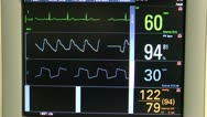 Stock Video Footage of Hospital Monitors Four Vital Signs