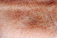 Stock Photo of dry skin texture