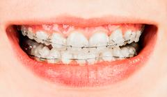 braces - stock photo