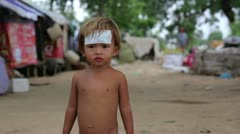 Cambodian injured kid in slums in phnom penh city Stock Footage