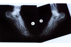 X-ray of mature woman feet Stock Photos