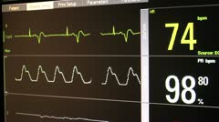 Physician Explains ECG Stock Footage