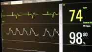 Stock Video Footage of Physician Explains ECG
