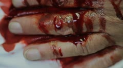 Man holding bloody wound. (CLOSE UP) - stock footage
