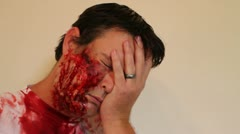 Face trauma injured man - stock footage