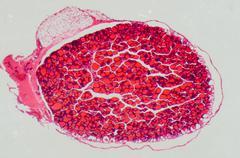 human thyroid gland  - stock photo