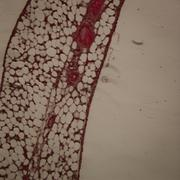 Micrograph of blood vessel, artery and vein Stock Photos