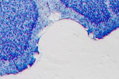 Microscopy rat brain hippocampal neurons Stock Photos