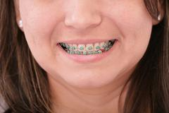 close-up of a smiling young teenager with braces - stock photo