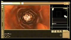 Digital interface displaying bloodflow through vein Stock Footage