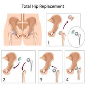 Total hip replacement surgery Stock Illustration
