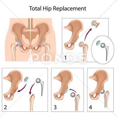 Stock Illustration of Total hip replacement surgery