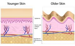 Wrinkled skin versus smooth skin Stock Illustration
