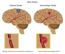 Brain stroke - stock illustration
