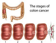 Colon cancer - stock illustration
