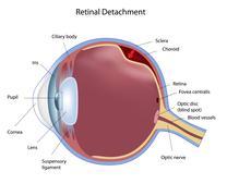Eye retinal detachment - stock illustration