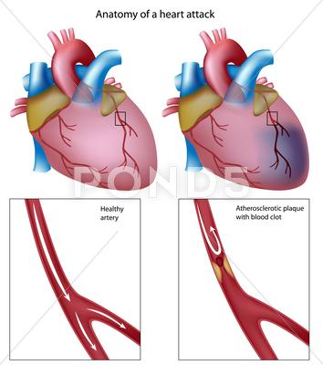 Stock Illustration of heart attack
