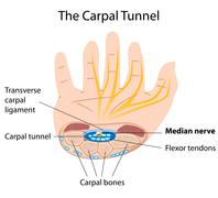 Carpal tunnel syndrome Stock Illustration