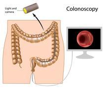 Colonoscopy procedure Stock Illustration