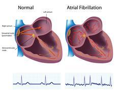 Atrial fibrillation Stock Illustration