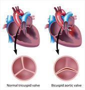 Heart valve defect Stock Illustration