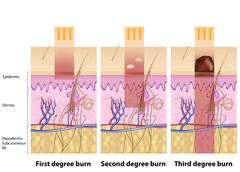 Skin burns degree - stock illustration