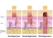 Stock Illustration of Skin burns degree